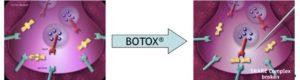 botoxserum
